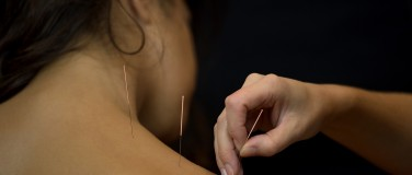 Acupuncture traditionnelle